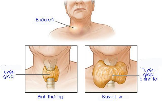Bệnh Basedow là gì? triệu chứng và nguyên nhân có nguy hiểm hay không