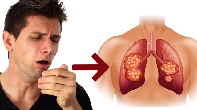 Bệnh ho kéo dài hay bị ho dai dẳng có thể là triệu chứng của bệnh nguy hiểm?