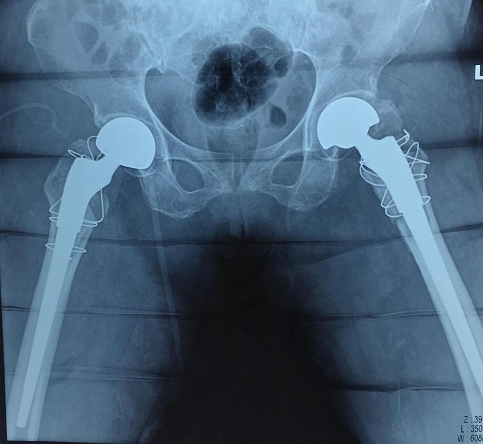 """Những khó khăn khi """"Phẫu thuật thay khớp háng"""" ở người cao tuổi"""