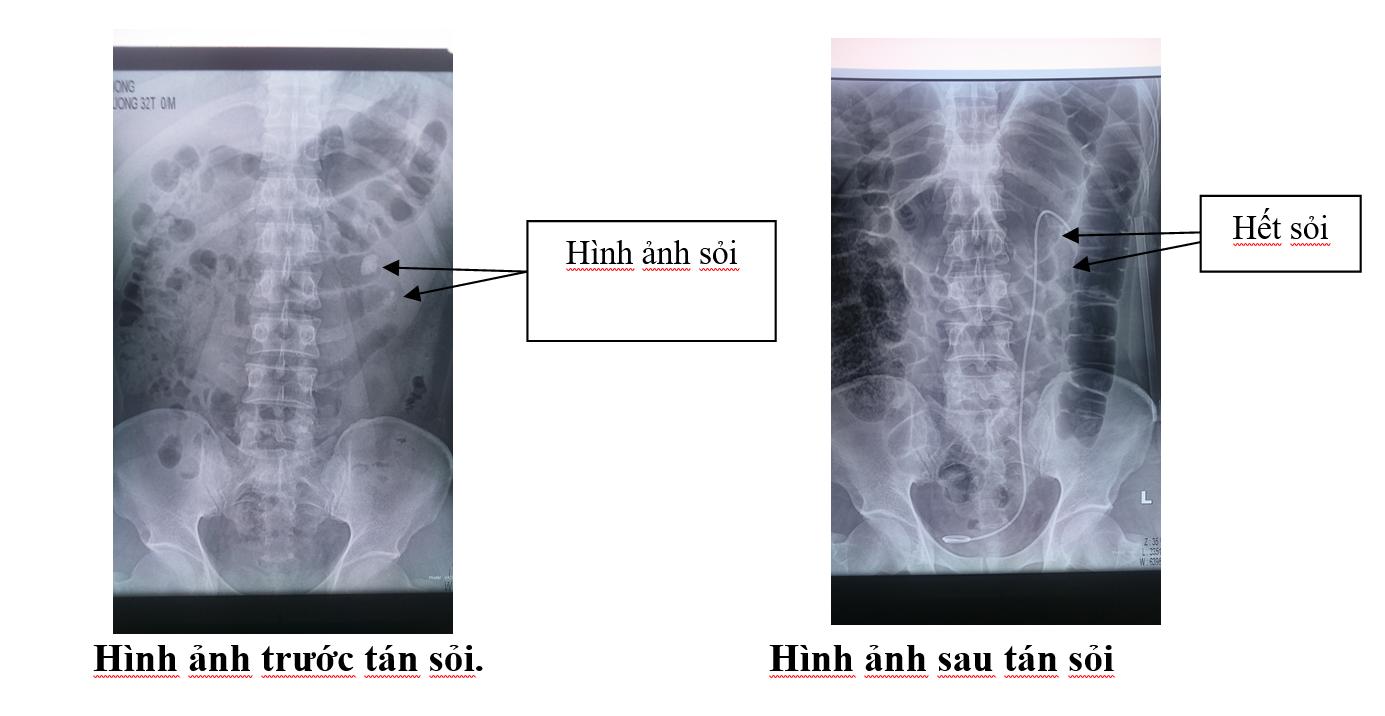 Giới thiệu kỹ thuật tán sỏi qua da