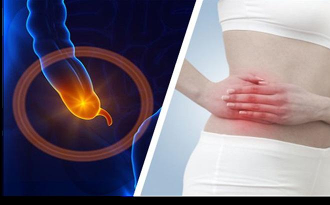 Bệnh viêm ruột thừa - đau ruột thừa