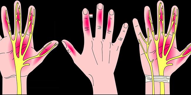 Hội chứng ống cổ tay nguyên nhân và điều trị hội chứng ống cổ tay